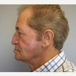 55-64 year old man treated with Facelift after 3109368