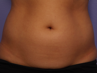 CoolSculpting by Zeltiq to Adbomen before 375536