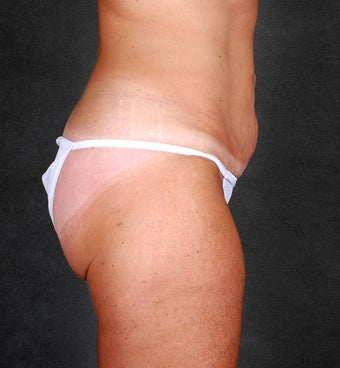 Liposuction of the Hips & Thighs  before 1057205