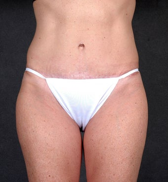 Liposuction of the Hips & Thighs  1057205