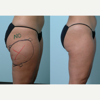 55-64 year old woman treated with Cellulaze after 3642408