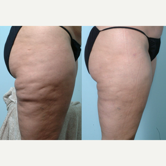 55-64 year old woman treated with Cellulaze before 3642408