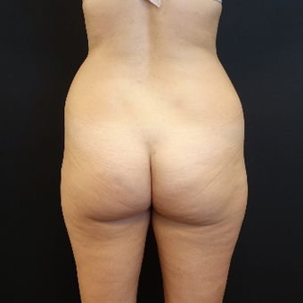 25-34 year old woman treated with Liposuction before 3629932