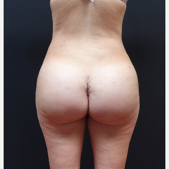25-34 year old woman treated with Liposuction after 3629932