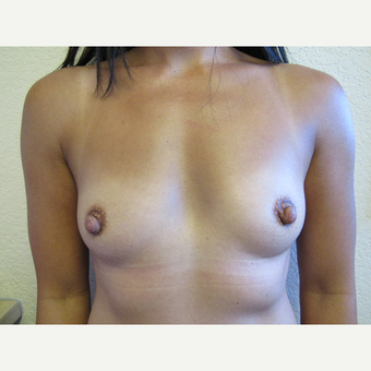35-44 year old woman treated with Breast Augmentation before 3411985