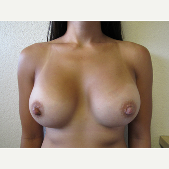 35-44 year old woman treated with Breast Augmentation after 3411985