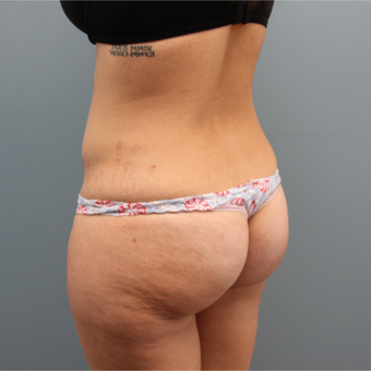 Fat Transfer to the Buttocks was performed on this 33 year old woman before 3467365