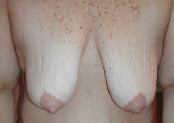 52 year old woman has Breast Lift with Implants