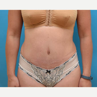 35-44 year old woman treated with Tummy Tuck after 3004869