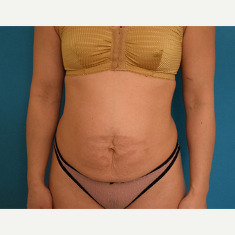 35-44 year old woman treated with Tummy Tuck before 3004869