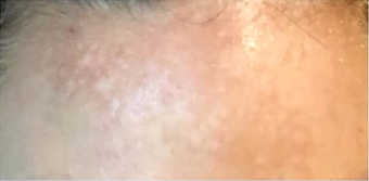35-44 year old woman treated with Fractional Laser after 2995216
