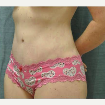 35-44 year old woman treated with Tummy Tuck after 3460201