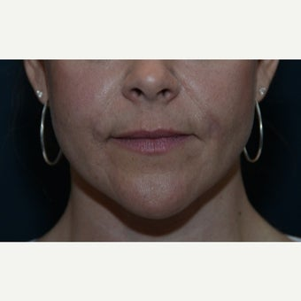 25-34 year old woman treated with Bellafill after 2523287