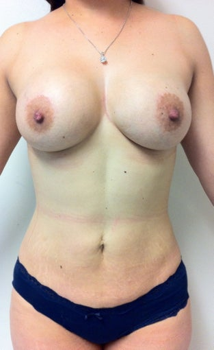 Liposculpture, Breast augmentation, Brazilian Butt Lift after 1209914