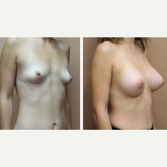 35-44 year old woman treated with Breast Augmentation before 3299981