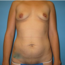 25-34 year old woman treated with Mommy Makeover before 3293473