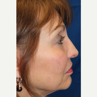 65-74 year old woman treated with Revision Rhinoplasty before 3645025