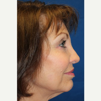 65-74 year old woman treated with Revision Rhinoplasty after 3645025