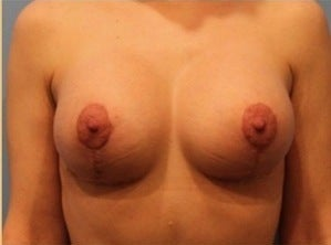 Breast Lift with Implants after 1872840