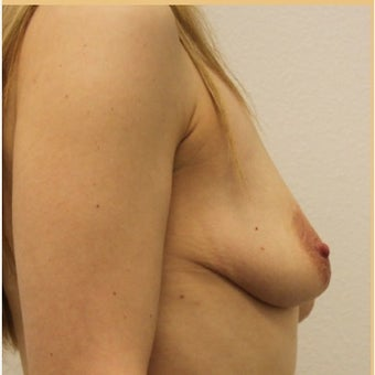Breast Lift with Implants 1872840