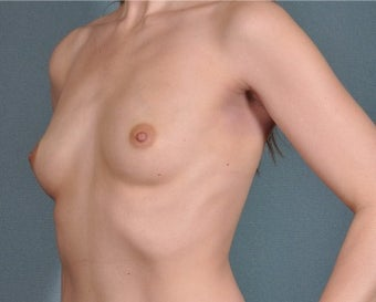 29 year old Breast Augmentation Patient with Natrelle 410 implants before 3334873