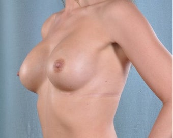 29 year old Breast Augmentation Patient with Natrelle 410 implants after 3334873