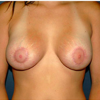 26 year old woman treated with Breast Lift after 3666147