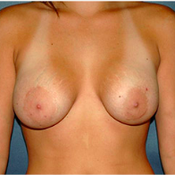 26 year old woman treated with Breast Lift before 3666147