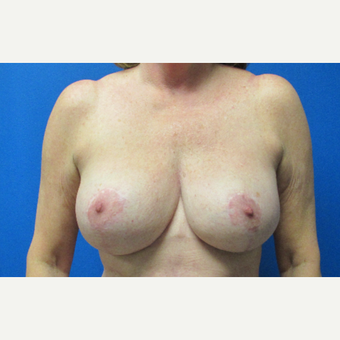 63 year old woman treated with Breast Reduction after 2817629