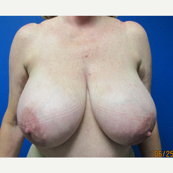 63 year old woman treated with Breast Reduction before 2817629