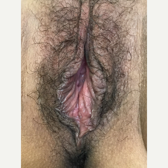35-44 year old woman treated with Vaginal Rejuvenation after 3628578