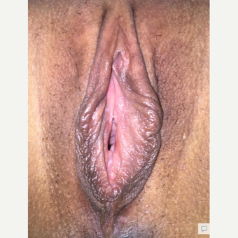 35-44 year old woman treated with Vaginal Rejuvenation before 3628578