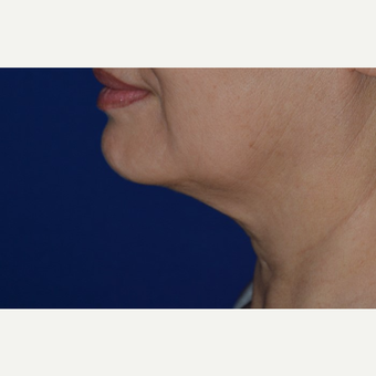 55-64 year old woman treated with Chin Liposuction before 3638732