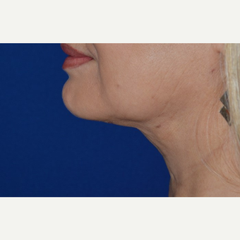 55-64 year old woman treated with Chin Liposuction after 3638732