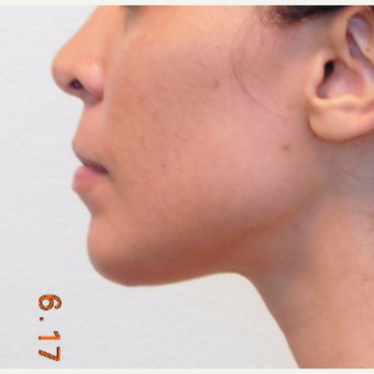 25-34 year old woman treated with Chin Implant after 2960990