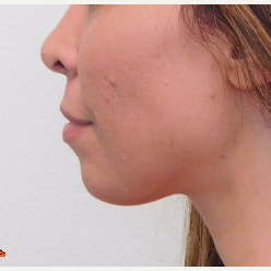 25-34 year old woman treated with Chin Implant before 2960990