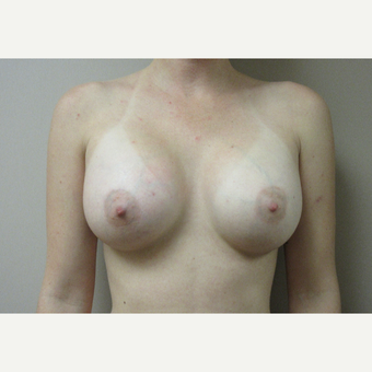 Breast Augmentation after 3542411