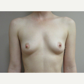 Breast Augmentation before 3542411