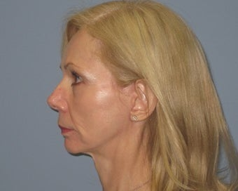 60 Year Old Minifacelift Patient 1475249