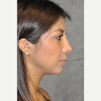 18-24 year old woman treated with Rhinoplasty after 3181381