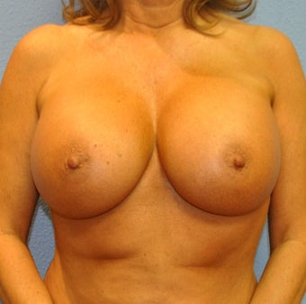 Breast Augmentation, Breast Implants after 1246199