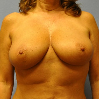 Breast Augmentation, Breast Implants before 1246199