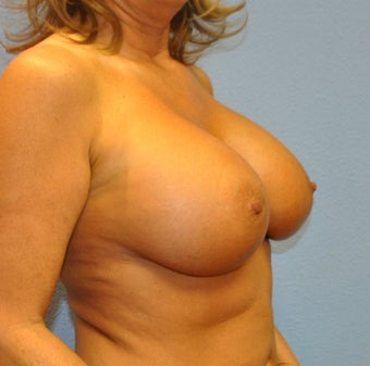 Breast Augmentation, Breast Implants 1246199