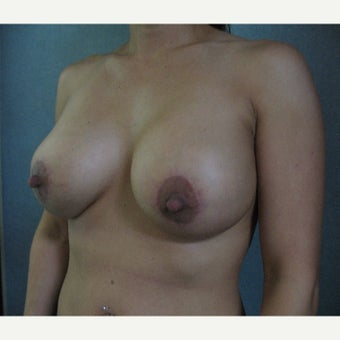 35-44 year old woman treated with Breast Implant Revision after 1753435