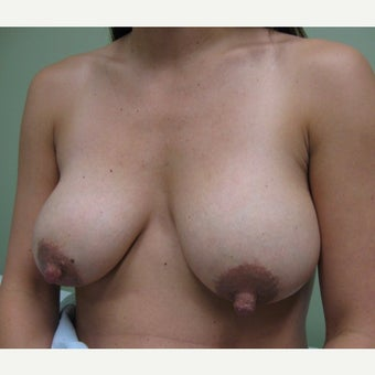 35-44 year old woman treated with Breast Implant Revision before 1753435
