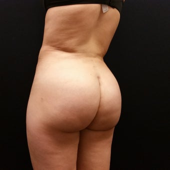 18-24 year old woman treated with Brazilian Butt Lift Revision after 2576965