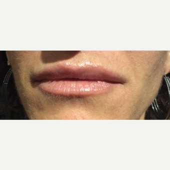 35-44 year old woman treated with Restylane Silk after 3460136