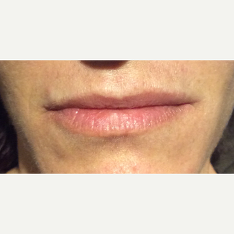 35-44 year old woman treated with Restylane Silk before 3460136