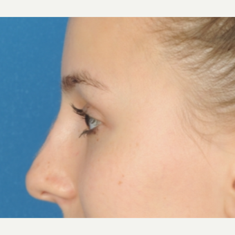18-24 year old woman treated with Rhinoplasty before 3466385
