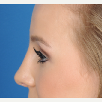 18-24 year old woman treated with Rhinoplasty after 3466385